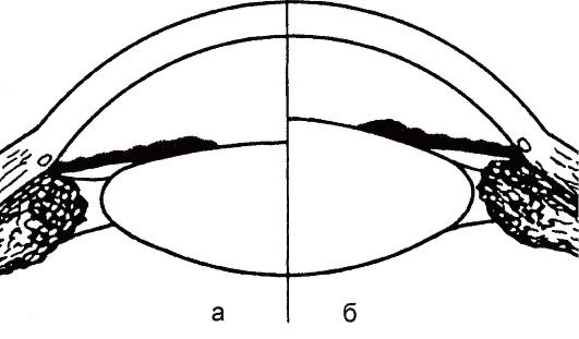 теория Гельмгольца